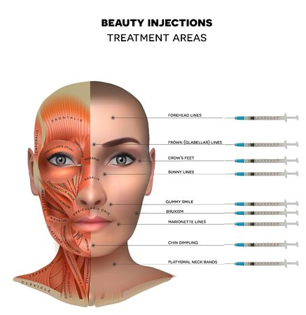 Beauty aesthetic injections treatment areas; Muscles structure of the female face and neck, each muscle with name on it. Illustration