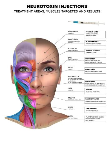 Neurotoxin injections treatment areas, muscles targeted and results. Muscles structure of the female face and neck, each muscle with name on it. Иллюстрация