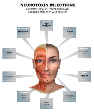 Injections for facial wrinkles. Common types of facial wrinkles. Neurotoxin injections treatment areas, muscles targeted and results. Illustration