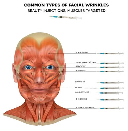 Facial injections info poster, male model face muscles anatomy. Common types of facial wrinkles. Neurotoxin injections treatment areas,