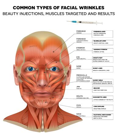Facial injections info poster, male model face muscles anatomy. Common types of facial wrinkles. Neurotoxin injections treatment areas, treated muscles and results. 版權商用圖片 - 140557807