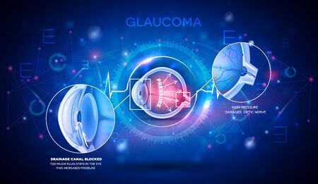 Glaucoma vision disorder abstract blue scientific background, detailed anatomy digital futuristic illustration
