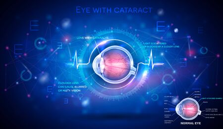 Eye with cataract, vision disorder and normal eye anatomy on an abstract blue scientific background, detailed info poster digital futuristic illustration