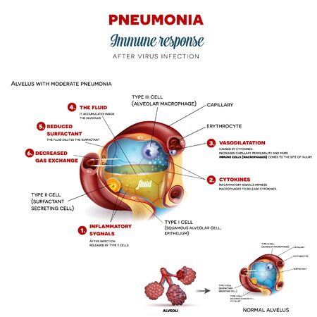 Pneumonia immune response step by step after virus infection, detailed alveolus anatomy illustration Иллюстрация