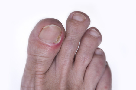 Inflammation of the nail of the big toe Stock Photo