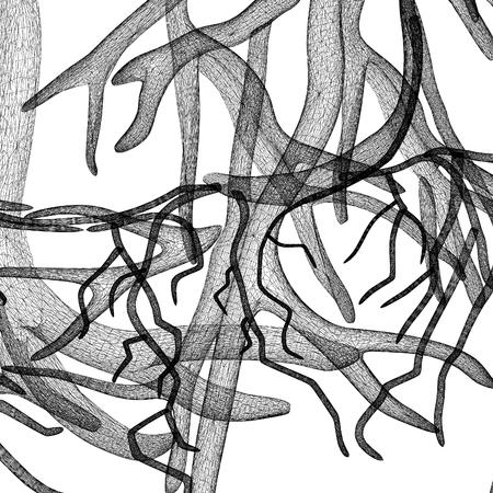 hemophilia: Fantasy veins. Medical illustration