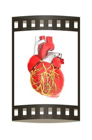 right coronary artery: Human heart