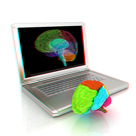 anaglyph: creative three-dimensional model of real human brain and scan on a digital laptop. 3d render. Anaglyph. View with redcyan glasses to see in 3D.