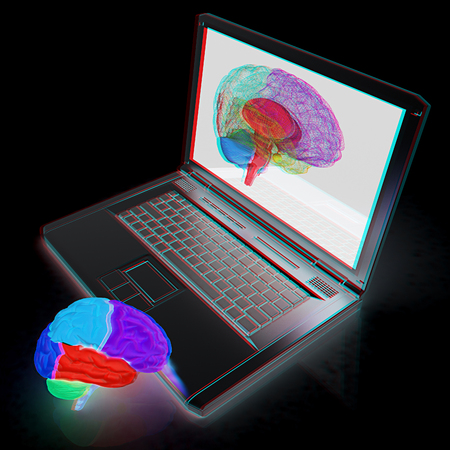 tablet pc in hand: creative three-dimensional model of real human brain and scan on a digital laptop. 3d render. Anaglyph. View with redcyan glasses to see in 3D.