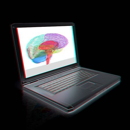 tablet pc in hand: creative three-dimensional model of  human brain scan on a digital laptop. 3d render. Anaglyph. View with redcyan glasses to see in 3D.