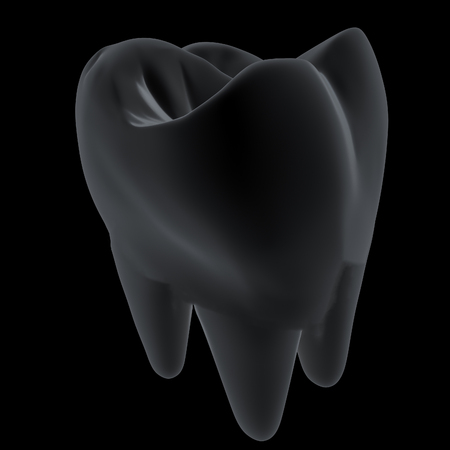 Metal tooth. 3d illustration. On a black background. Stock Photo
