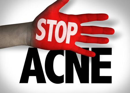 Stop Acne concept