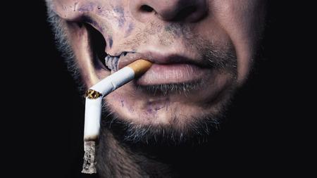 human head faces: Smoking kills