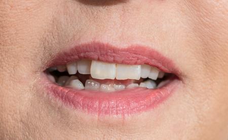 dames open mond