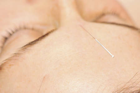 Acupuncture needles in woman Stock Photo