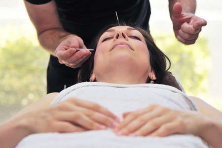 A woman relaxes on a table whilst a medical practitioner taps in acupuncture needles