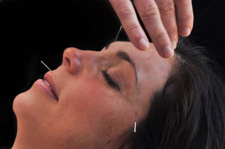 side shot of acupuncture session Stock Photo