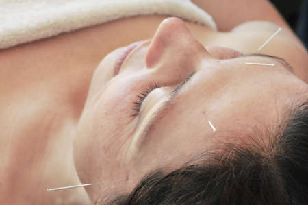 acupuncture close up, overhead view photo