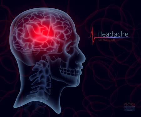 Headache, x-ray of the brain, vector illustration for medicine. A skull frame, A creative creative illustration in a new style of 2018