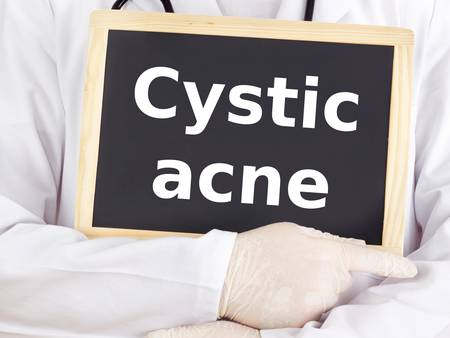 Doctor shows information on blackboard: cystic acne Standard-Bild