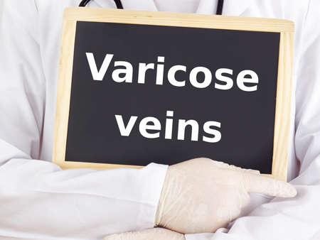 varicose veins: Doctor shows information: varicose veins