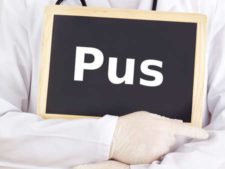 pus: Medico mostra le informazioni sulla lavagna: pus