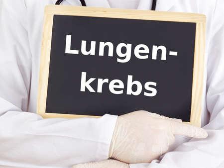 lungenkrebs: Doktor zeigt Informationen auf Tafel: Lungenkrebs