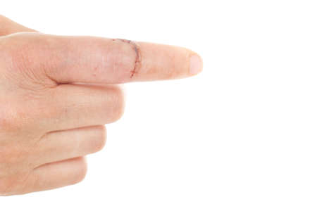 Caucasian finger with laceration