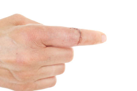 Caucasian finger with sewed wound Stock Photo