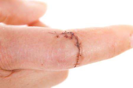 scarring: Close-up della ferita cucito su caucasico dito