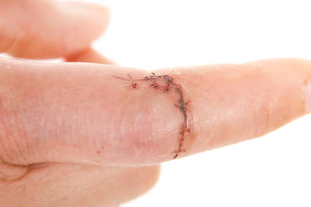 Close-up of sewed wound on caucasian finger photo