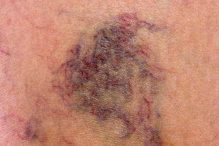 varicose veins: Skin full of varicose veins Stock Photo