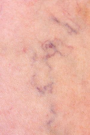 varicose veins: Skin with varicose veins
