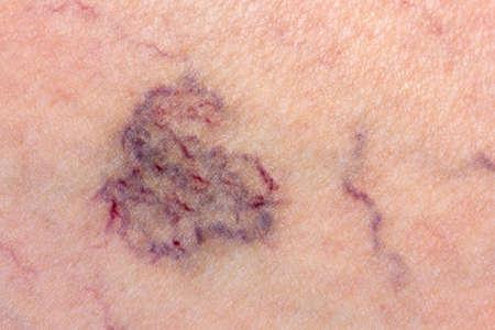 정맥류와 피부의 근접