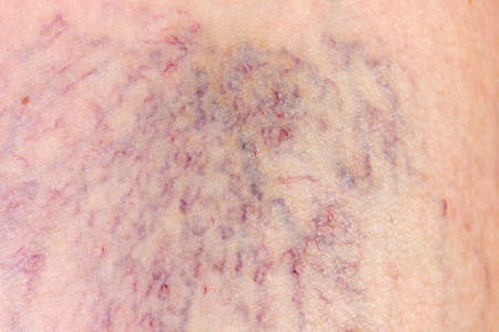 Close-up of varicose veins dermis with photo