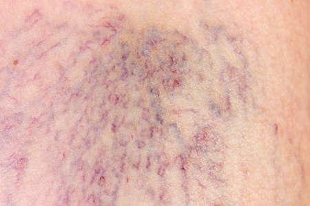 Close-up of varicose veins dermis with Foto de archivo