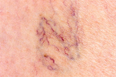 Close-up of leg with varicose veins photo