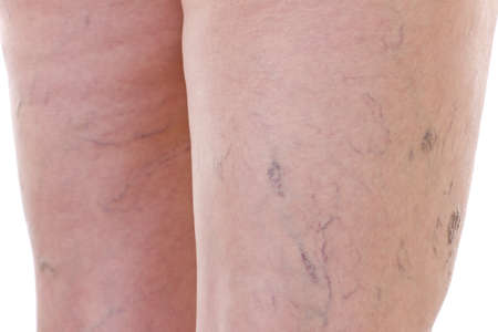 Close-up of legs with varicose veins photo