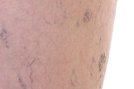 Close-up of dermis with varicose veins photo