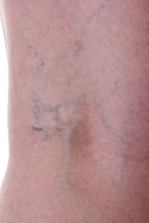 Leg with varicose veins photo