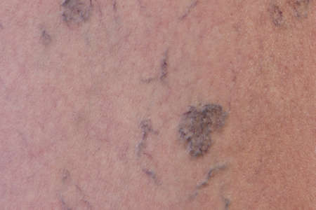 Close-up of varicose veins photo