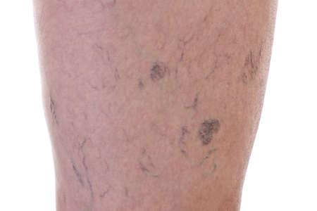 varicose veins: Leg full of varicose veins