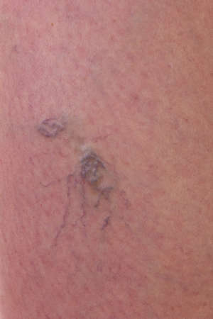 Close-up of skin with varicose veins photo