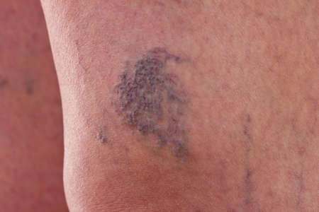 varicose veins: Close-up of legs with varicose veins