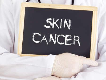 Doctor shows information on blackboard: skin cancer