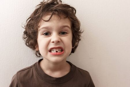 Charming curly boy smiles without tooth on white background. The boy lost the first milk tooth. Healthy teeth concept, dental clinic.