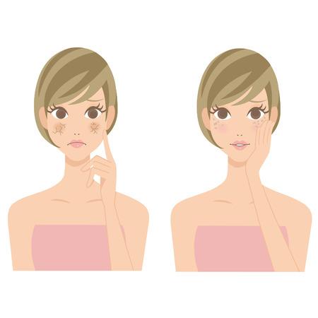乾燥肌の女性を染色します。  イラスト・ベクター素材