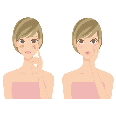 dry skin: Stain drying skin woman Illustration