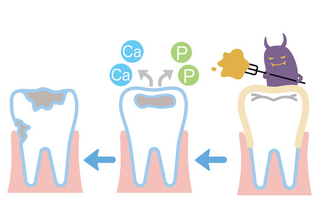 cavities: Flow of the cavity Illustration
