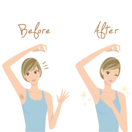 Disposal of underarm hairs Illustration
